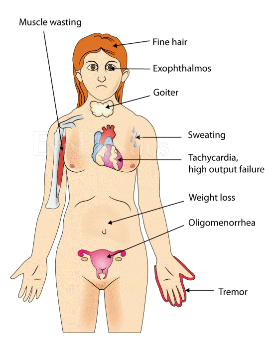 Hyperthyroidism affect sex drive